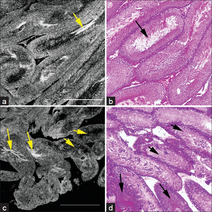 Figure 1: Comparative FFOCT and HandE-stained histology images from the testes of normal adult Sprague-Dawley rats, and rats exhibiting a sertoli-cell only phenotype. (a) Seminiferous tubules in the testis of a normal rat. The tubules are relatively uniform in size and shape (diameter 328 ± 11 μm). (b) Same specimen processed and stained for conventional (HandE) histology. Arrows point to the sperm within the tubule lumen. (c) Seminiferous tubules in the testis of a rat treated with busulfan. Tubules, on average are thinner, and show a greater degree of heterogeneity in size and shape (diameter 178 ± 35 μm). Only ~10% of the tubules show normal spermatogenesis as identified by presence of sperm tails (bright white hair-like structures within the lumen; long arrows). The remainder of the tubules showed no sperm within the lumen (short arrows). (d) HandE staining of the same specimen confirms the observations. Long and short arrows point to tubules with and without spermatogenesis, respectively. Field of view in each panel: 1 mm<sup>2</sup>