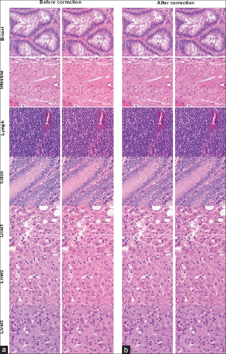 Figure 8: 400 × 400 pixels high resolution (×20) images extracted from the whole slide images of the different histological slides. The left and right panels show the uncorrected and corrected images of scanner A and scanner B, respectively