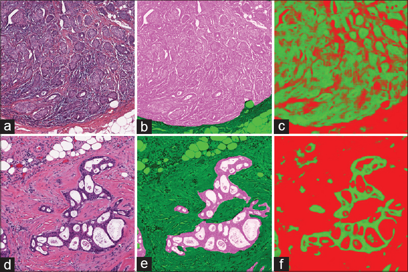 Deep learning for digital pathology image analysis: A comprehensive