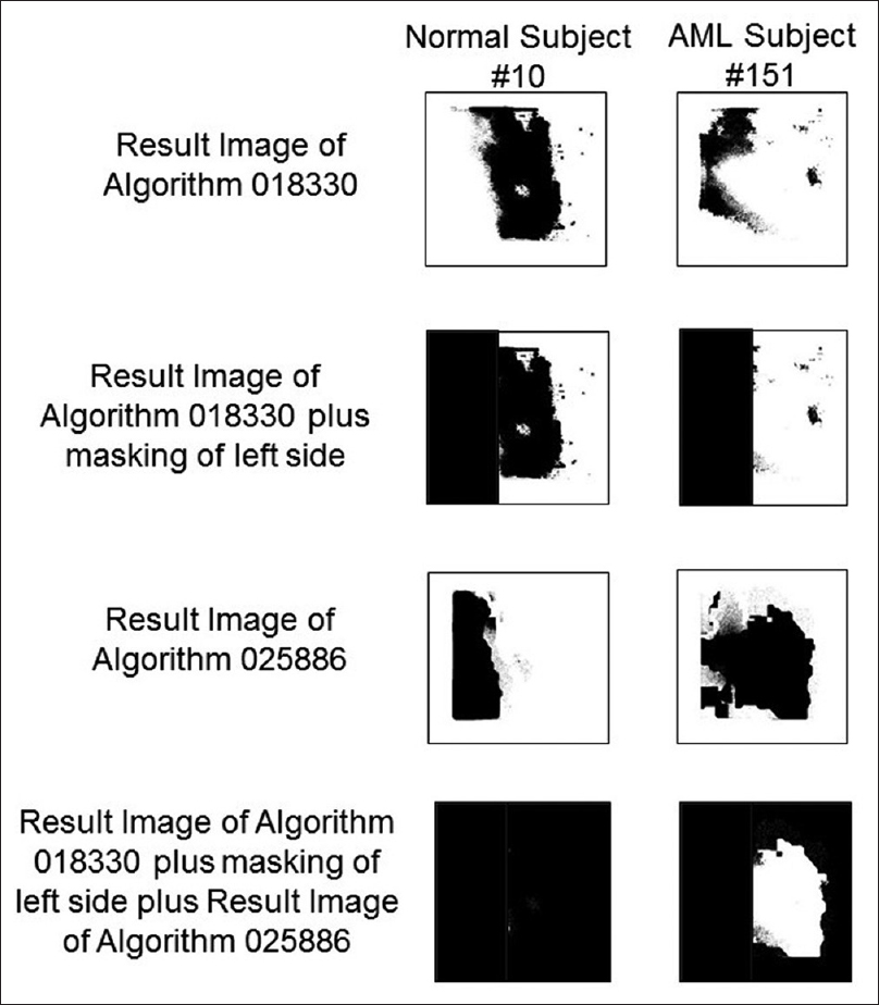 "Figure 3: Image result processing to quantify the performance of algorithms 018330 and 025886. Normal subject #10 (left) and acute myeloid leukemia subject #151 (right) are as examples. The first step consists of applying algorithm 018330 to a Flexible Image Transport System metafile, creating a result image shown on top. The second step consists of masking the left side of those result images (that corresponds to an area in the Flexible Image Transport System metafile that had never been seen by the algorithms). In Step 3, algorithm 025886 is applied to the same original Flexible Image Transport System metafile. Lastly, those pixels classified as ""feature"" by both algorithms 018330 and 025866 are masked"