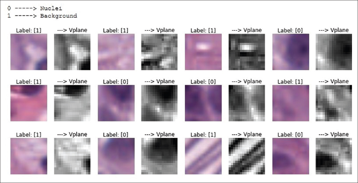 Deep Learning Nuclei Detection in Digitized Histology Images
