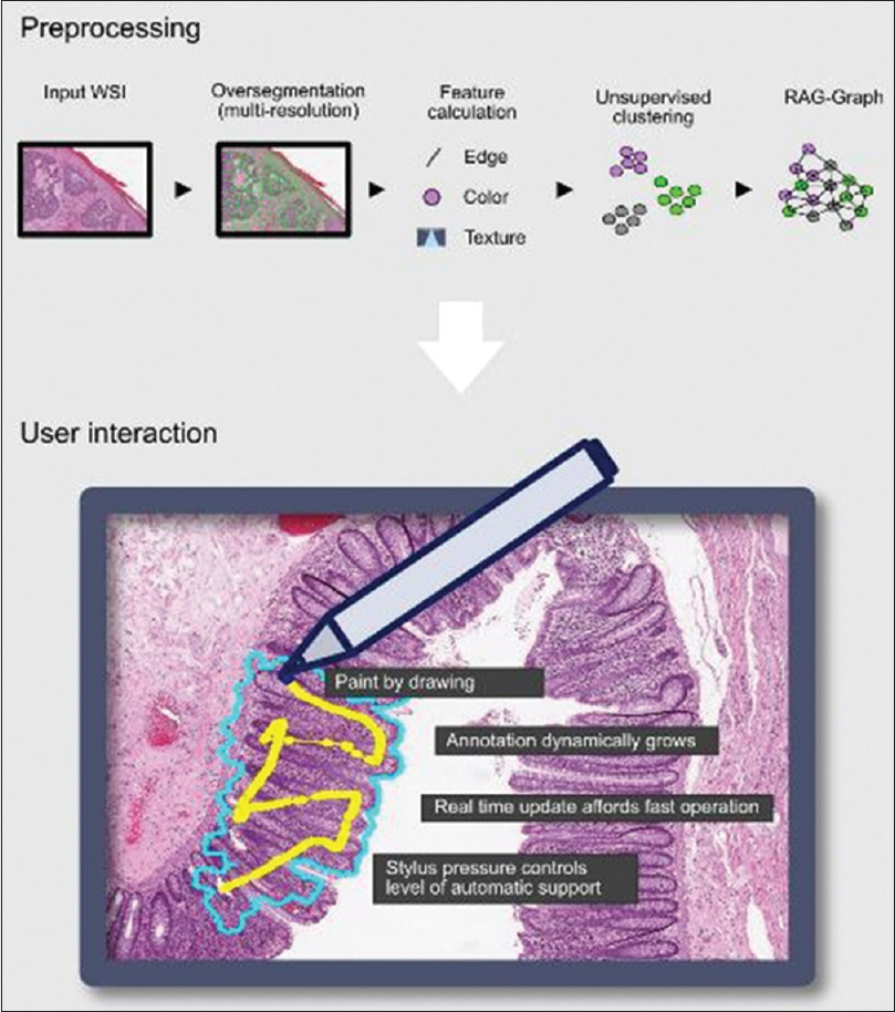Figure 1: Overview of TissueWand functionality. Top: A preprocessing step prepares the image for efficient annotation by oversegmenting the image and precalculating features. The data are stored in a region–adjacency graph for fast access. Bottom: During user interaction, the user can annotate with a stylus. A local area around the point where stylus pressure is applied will also be annotated through an intelligent flood-fill controlled through the amount of pressure. In the illustrated use case, the central darker area of tissue (mucosa) must be segmented from the lighter pink tissue around it